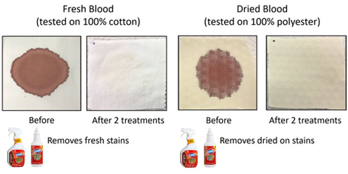Clorox Disinfecting Bio Stain & Odor Remover For Spot Treatment Of Bio Stains